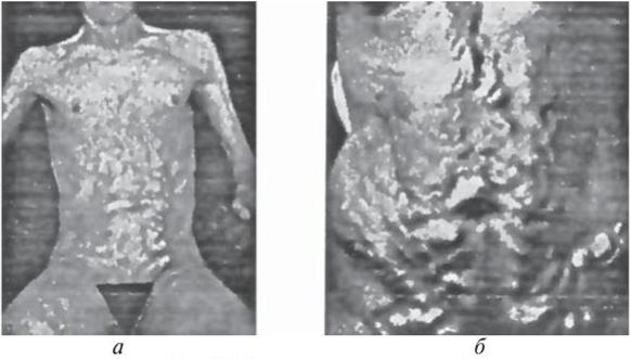 Венозные коллатерали